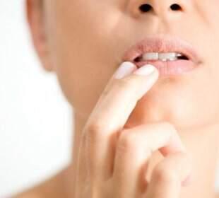 varicoză în gură cum să tratezi