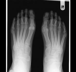boli ale oaselor articulațiilor mâinilor